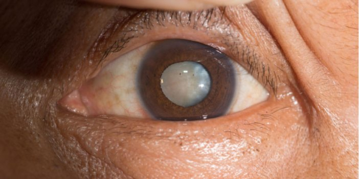 eye exam Fig7