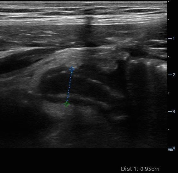 Abdominal pain in elderly - Image 1 - Appendicitis