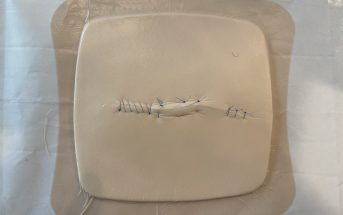 Train Yourself: Simple Strategy for Suturing Setup