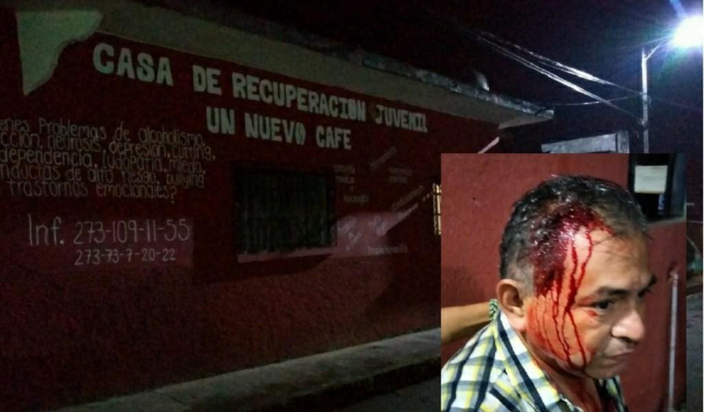 GOLPEAN A DIRECTOR DE COMERCIO DE IXHUATLÁN DEL CAFÉ