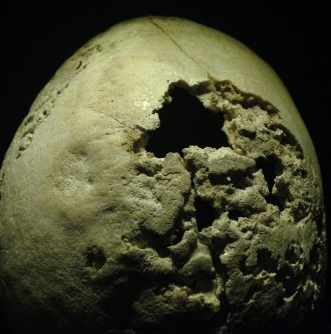 Část lidské lebky poškozená pozdním stadiem syfilitických změn.