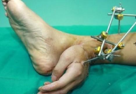 Weje poslali lékaři z malé nemocnice do jiné, kde mu ruku přišli ke kotníku.