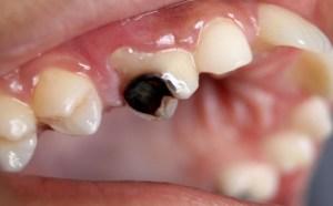 Vědci hlásí průlom: Gel napomůže zubní sklovině k obnovení