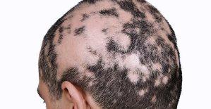 Alopecie: Život bez vlasů, obočí a řas
