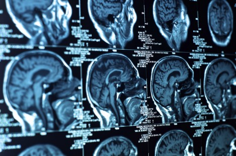 Jed žlutých štírů obsahuje látku, která dokáže vyhledat rakovinou napadené buňky v lidském mozku.