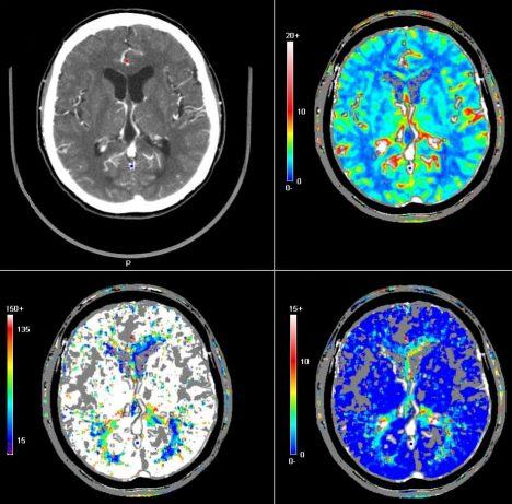 Moderní výzkumy mozkové tkáně ukázaly, že není tak neměnná, jak jsme si dříve mysleli. Mozek se dokáže proměňovat v průběhu celého našeho života.