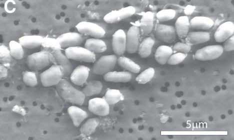 Bakterie živící se arzenem by mohly být zástupci mimozemských mikroorganismů.