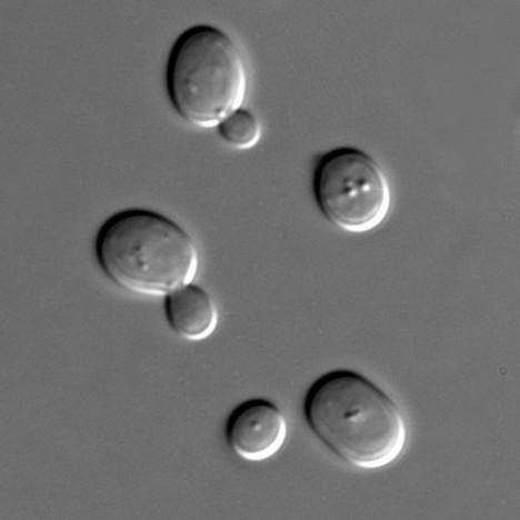 Obr. 05 Snímek kvasinek Saccharomyces cerevisiae