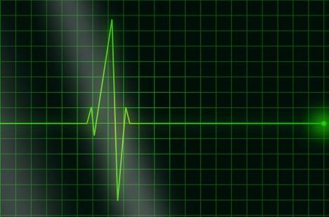 V okamžiku, kdy se zastaví veškeré tělesné funkce, nastává klinická smrt.