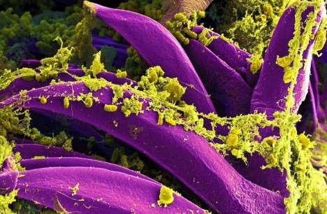 Jde o nejčastější formu moru, kterou přenáší infikované blechy, jež se nakazily od malých hlodavců, jako jsou krysy. Bakterie cestují lymfatickým systémem do uzlin, kde dochází k bolestivému zánětu, který se může projevit i otevřenými ranami. Ročně je zaznamenáno na 700 případů, z nichž okolo 120 končí smrtí.