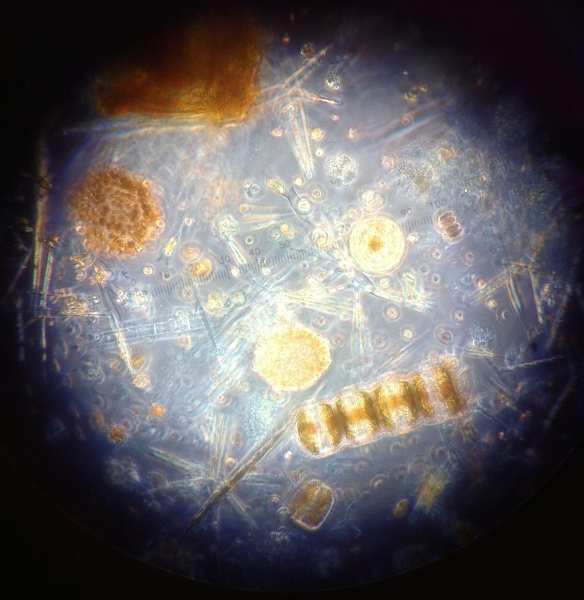 Pond Water Microorganisms Images