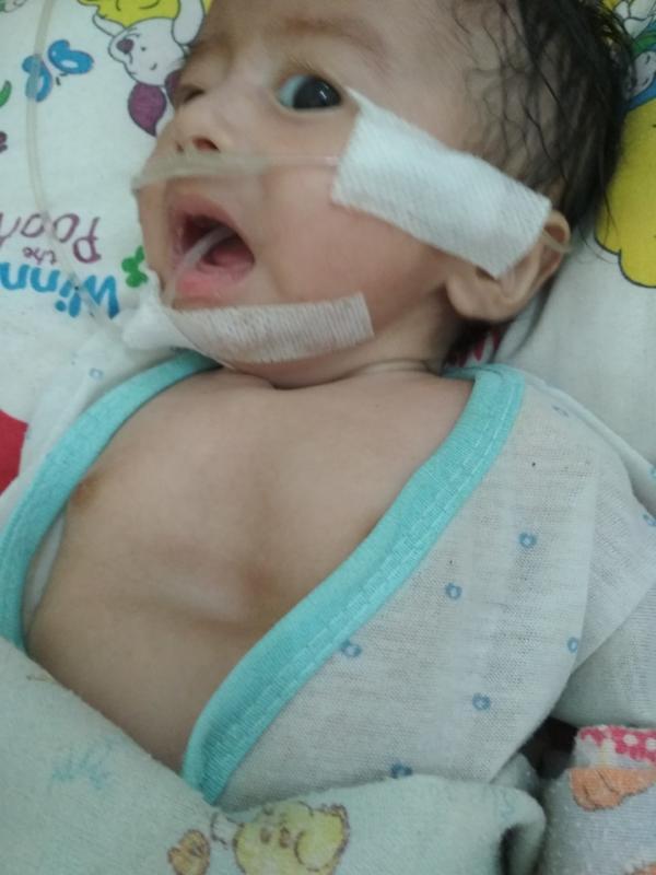 INFEKSI PARU-PARU. Ilyas sedang menjalani perawatan di kamar anak RSUD dr. Soedarso Pontianak. Suci Nurdini Setiowati-RK