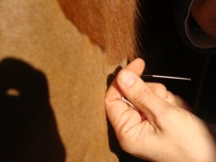 Acupuncture needle being inserted