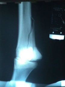 Condylar fracture