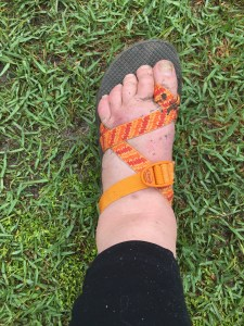 swollen foot