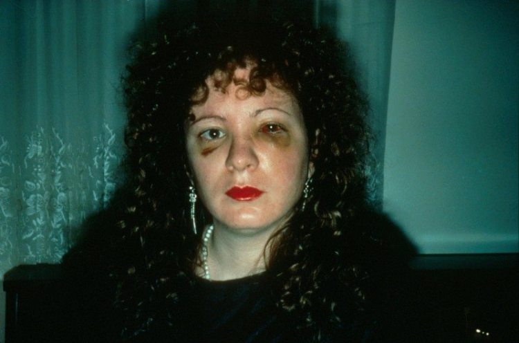"""Nan after being battered. From """"The Ballad of Sexual Dependency"""""""
