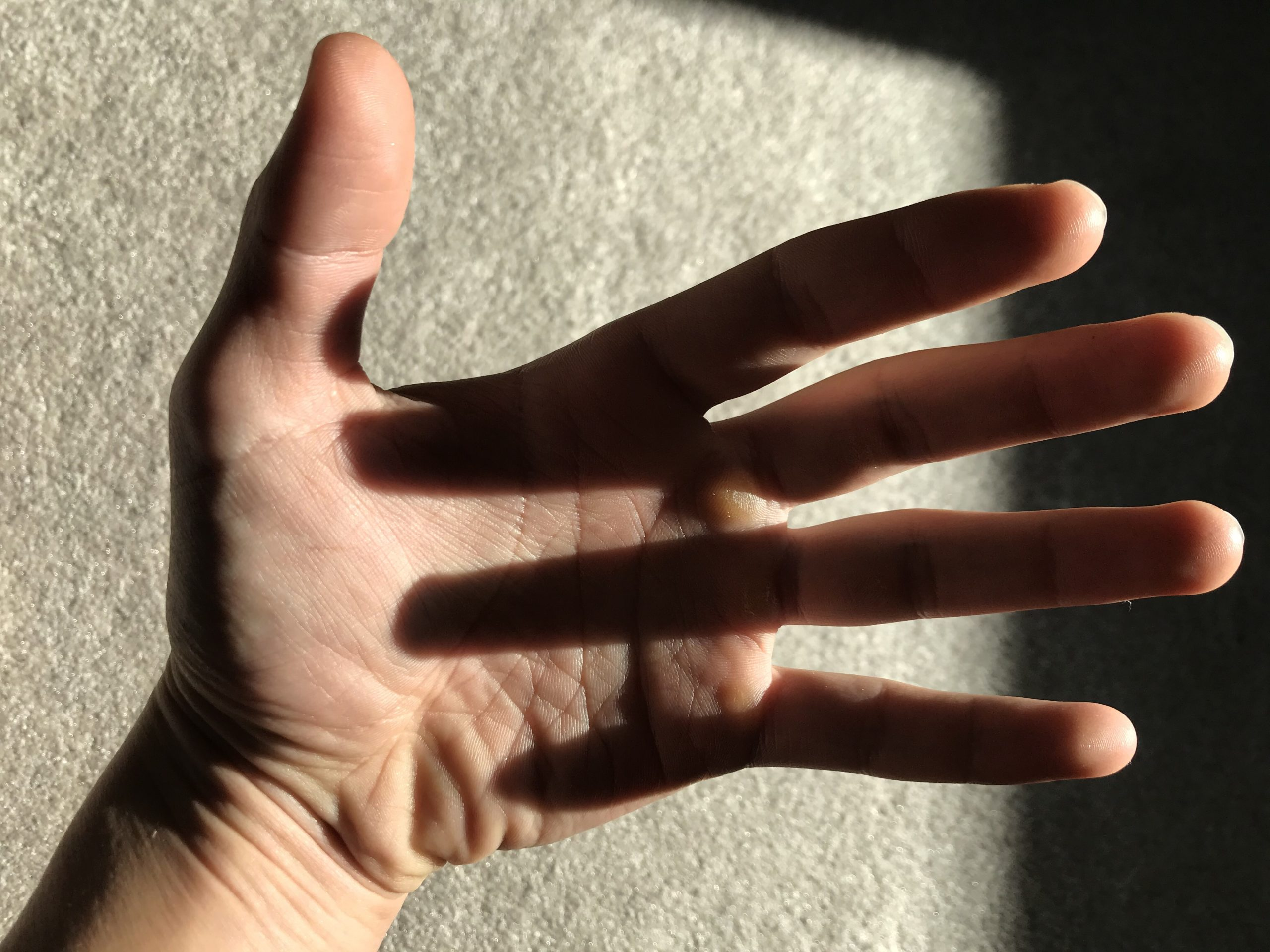 Hand original before