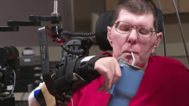 Bill Kochevar es el primer hombre con parálisis en comer con ayuda de implantes cerebrales