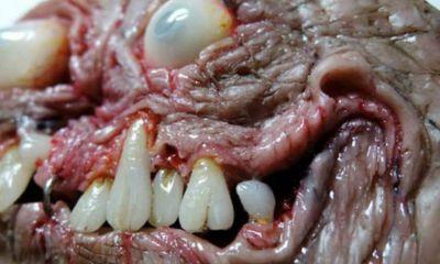 supuesta-imagen-teratoma-articulo-wikipedia-tumor-monstruo