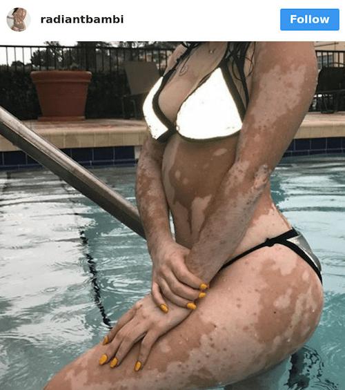 Bodyshaming Mujeres Físico Cuerpo Chicas Peso