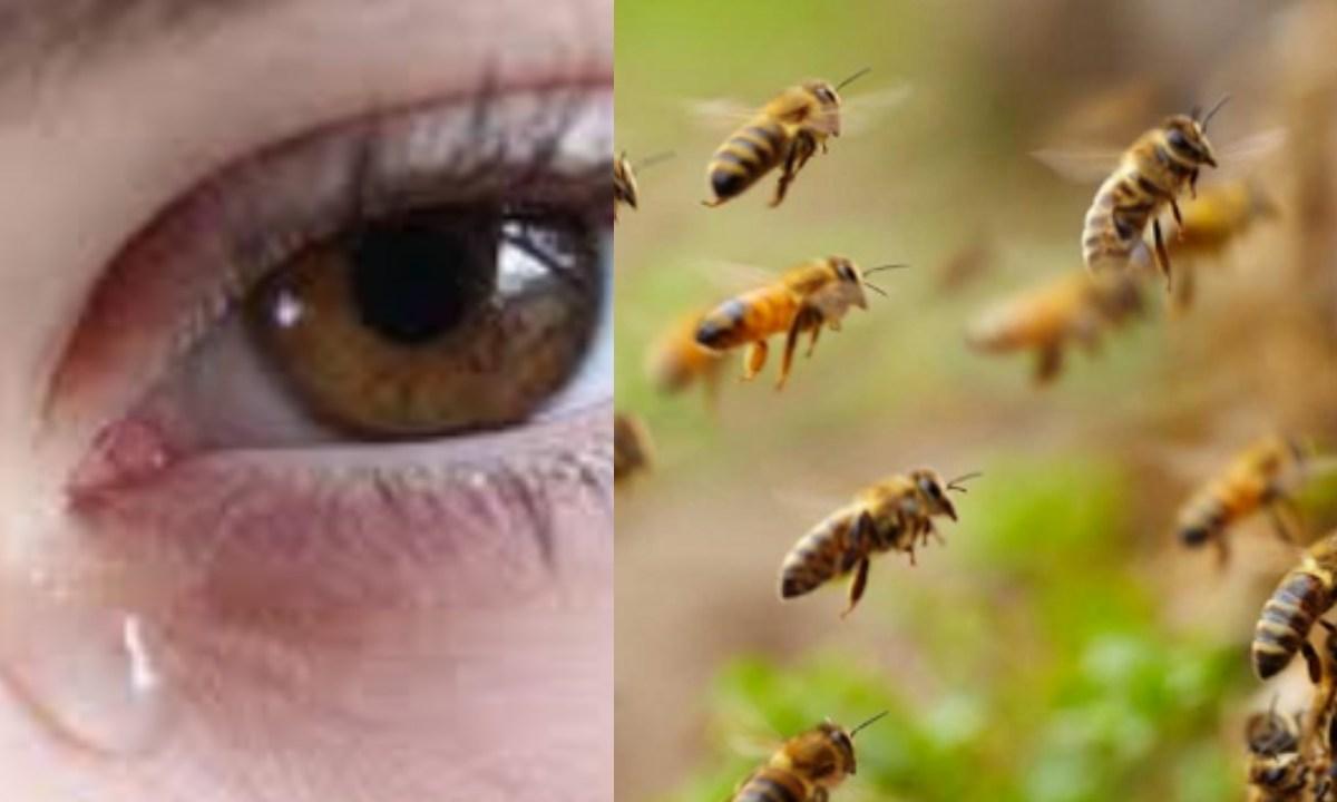 Encuentran en el ojo de una mujer a abejas VIVAS