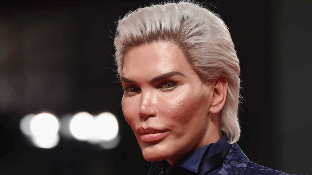 Ken Humano, Rodrigo Alves, ahora es una mujer transgénero