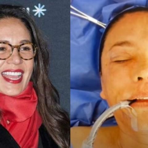 Yolanda Andrade dio los detalles de sus cirugías en la cara