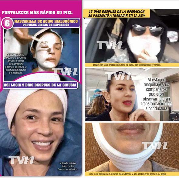 Yolanda Andrade se sometió cirugías cambiaron cara