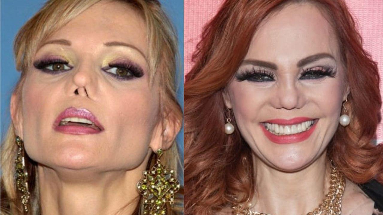 Carmen Campuzano perdió la nariz, no el olfato