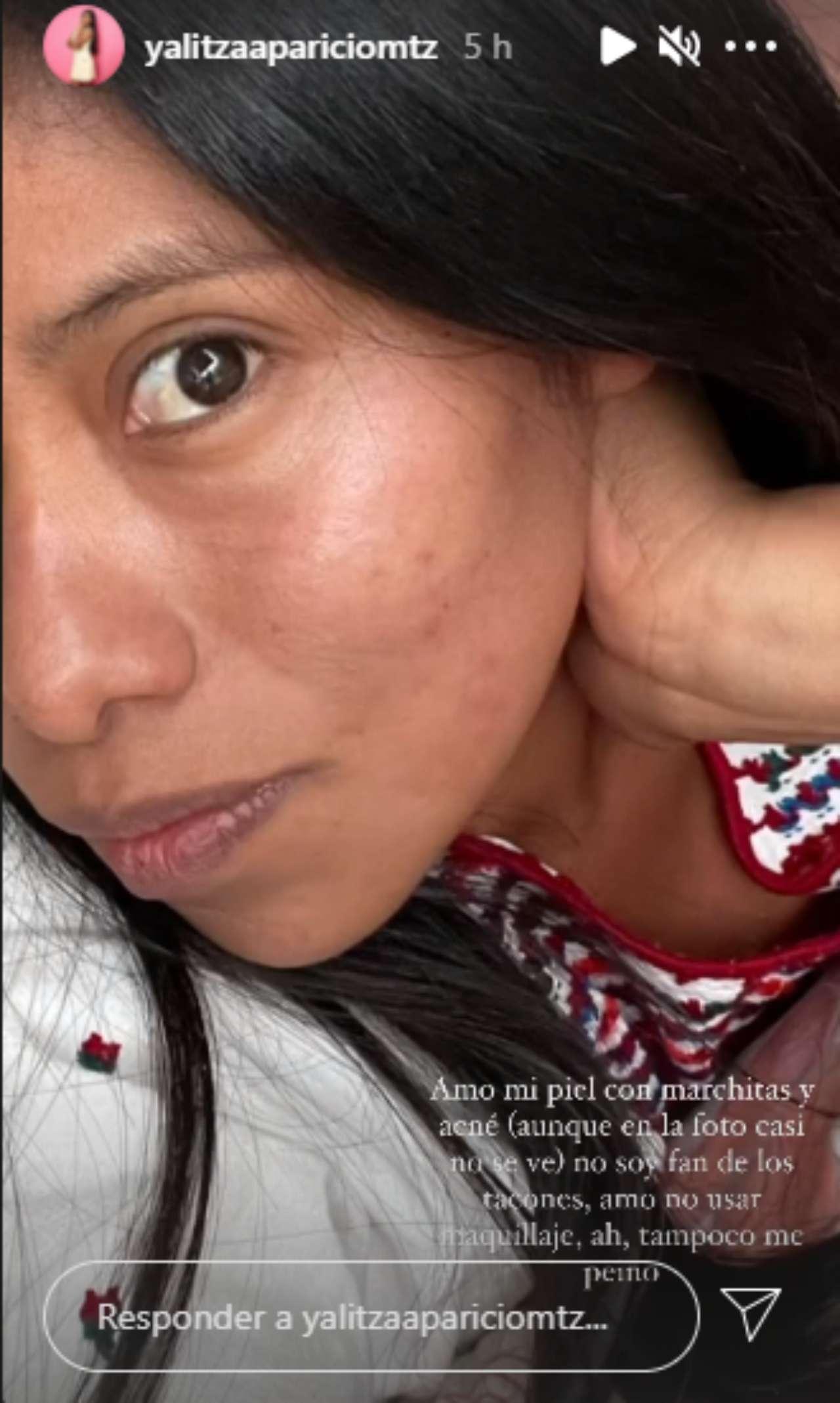 Con manchas y acné