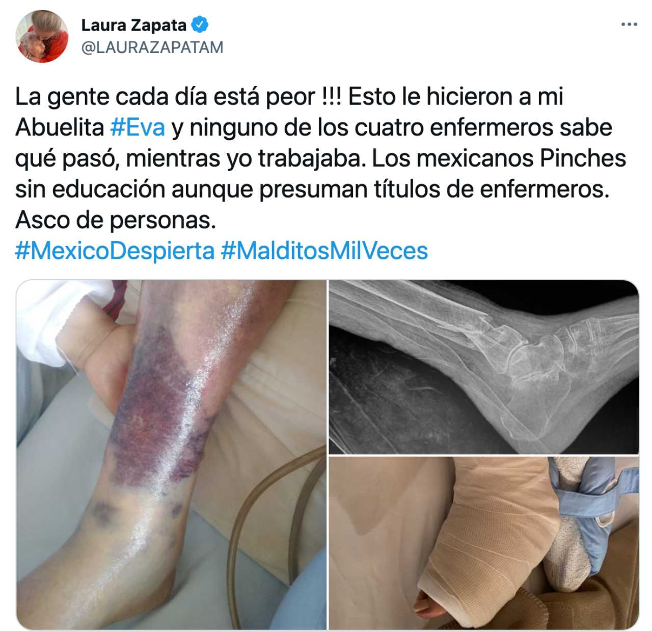 Laura Zapata terminó con el pie fracturado