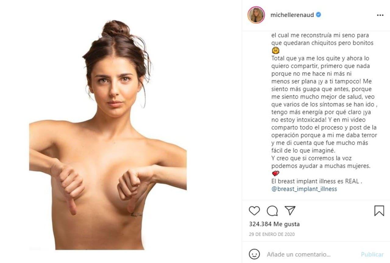 A Michelle Renaud se le abrieron las cirugías en plena escena