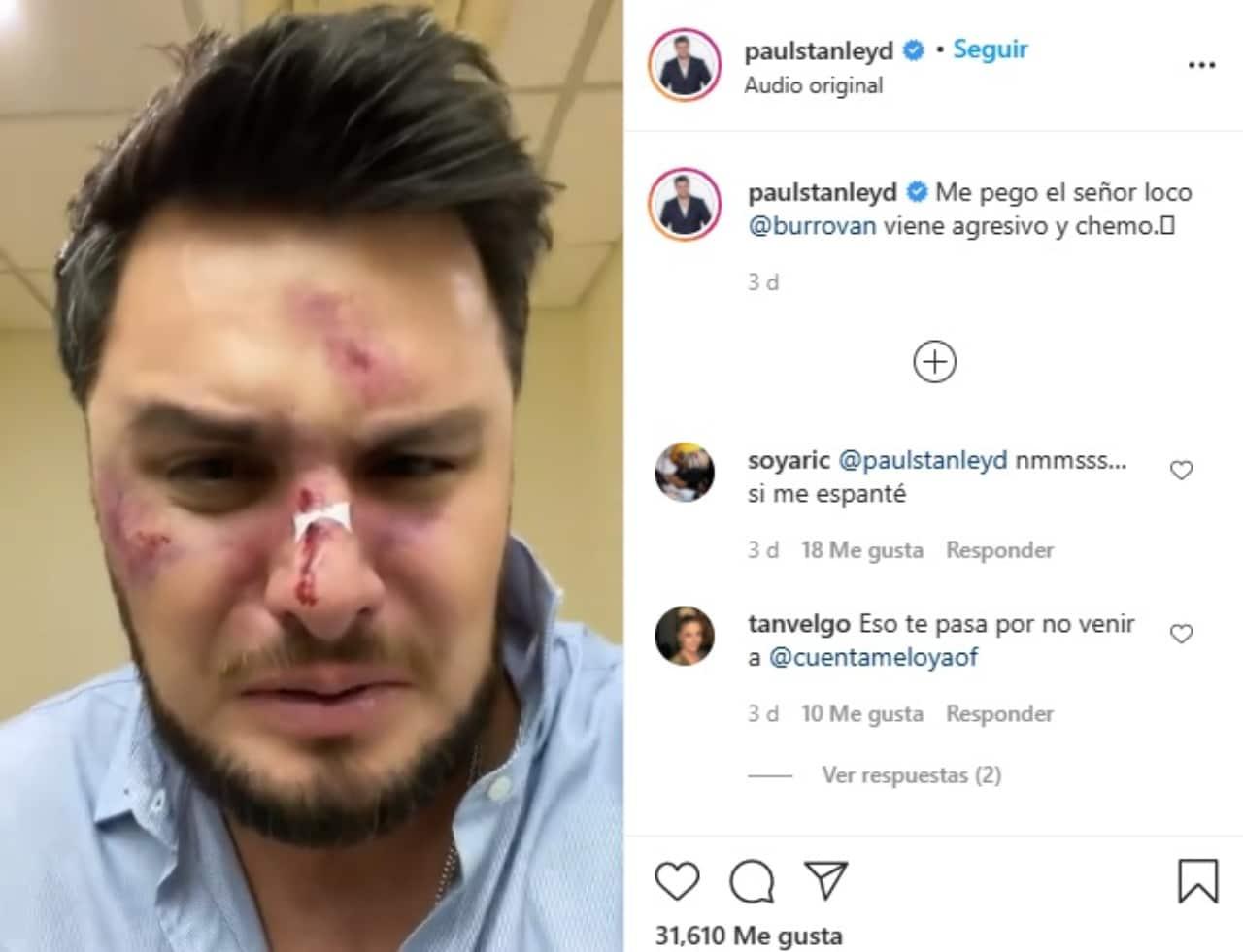 Paul Stanley Burro Van Rankin golpeado