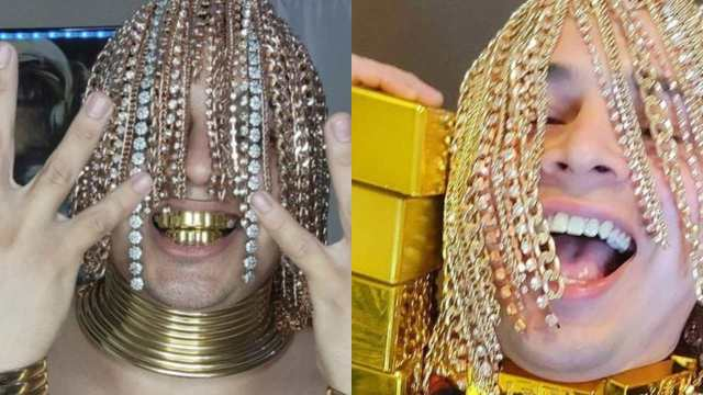 Rapero mexicano se implanta cadenas de oro como cabello