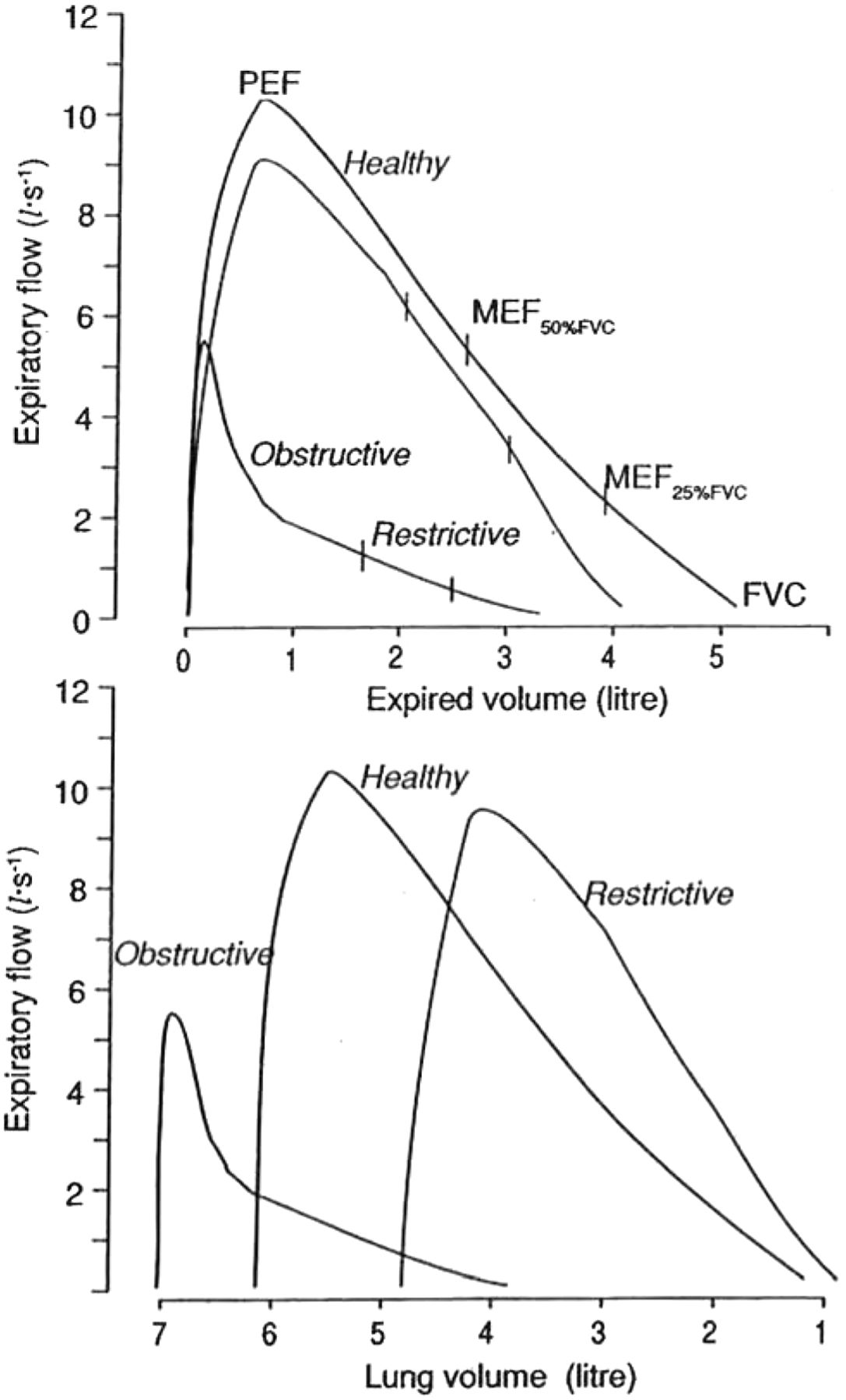 Lung Volumes And Forced Ventilatory Flows