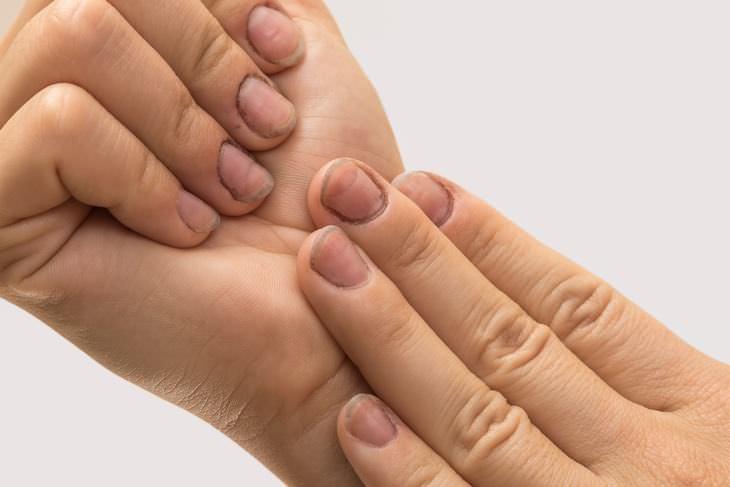 dejar morder uñas