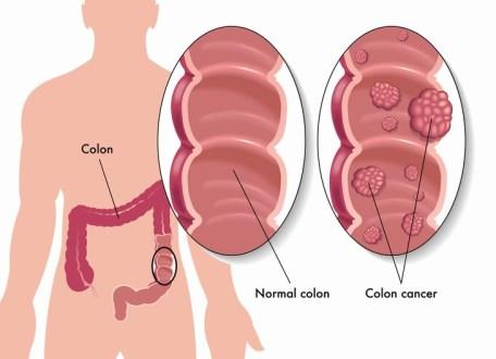 5 síntomas cáncer colón