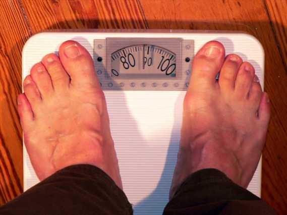 Tipos de Cirugías para Pérdida de peso