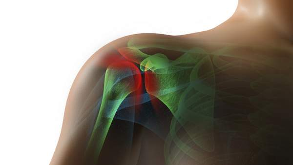un desgarro del manguito de los rotadores o del labrum, o una fractura de hombro