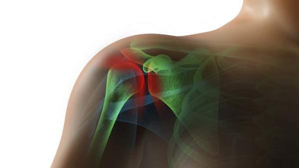 Lesiones en el hombro (p.ej. desgarro del manguito de los rotadores o del labrum, fractura de la clavícula o del húmero