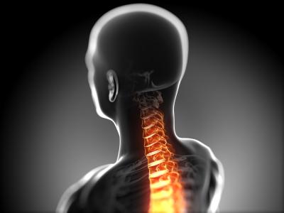 Lesione Cuello
