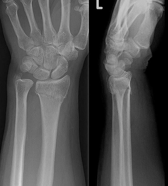 Fractura distal del radio Radiografía de una fractura de Colles en la muñeca izquierda
