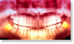 radiograf_as_dentales_panor_mi.jpg