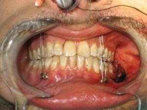 Esais - Cirugía Maxilofacial