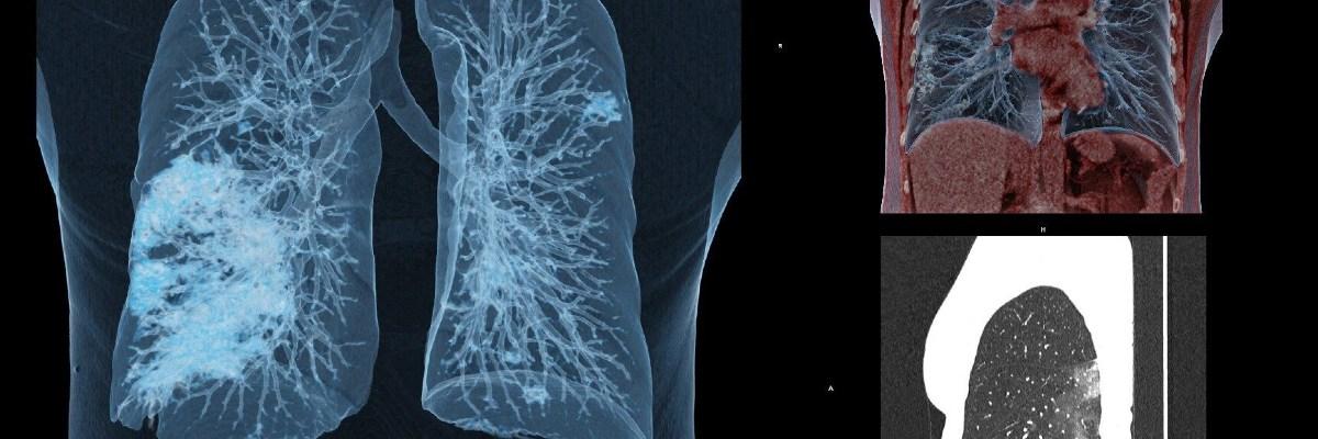 Hombre que se curó de Covid-19 recibe trasplante de pulmones