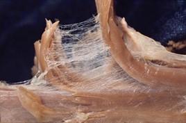 Detalhe do tecido conjuntivo ou fáscia