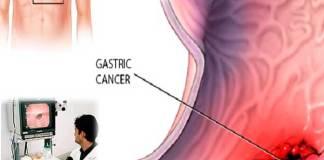 Úlcera Péptica: síntomas, causas, tratamiento y recomendaciones