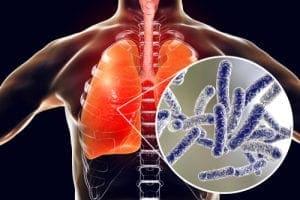 acqua calda sanitaria & solare termico - Il rame è un antibatterico efficace, io lo uso in casa, nelle rubinetterie e... 20