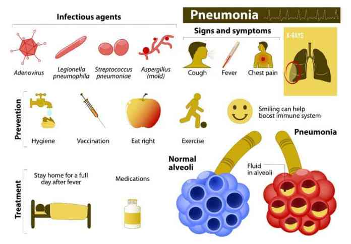 pneumonia prevention and treatment