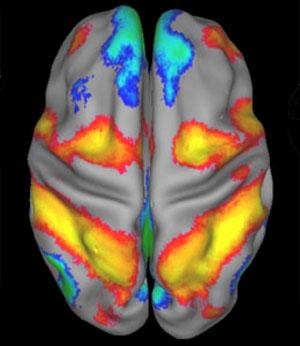Imagen de RMN funcional de un cerebro en reposo. (Cortes�a de Marc Raichle)